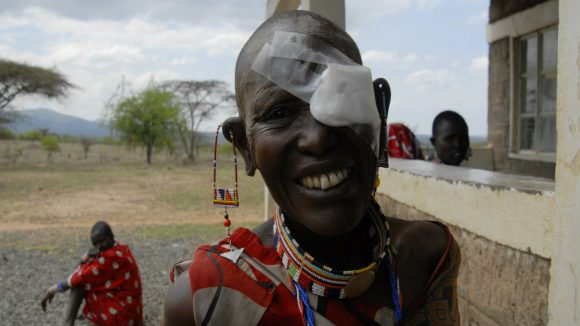 A woman smiling after a succesful trachoma operation.
