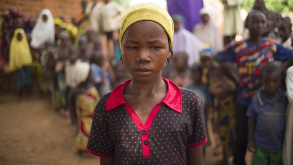Close up of a young girl with trachoma.