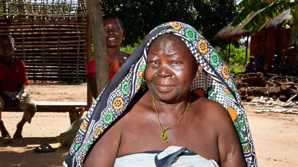 Trichiasis patient Agnes John Milanzi at home the day after surgery. One of her young sons sits in the background.
