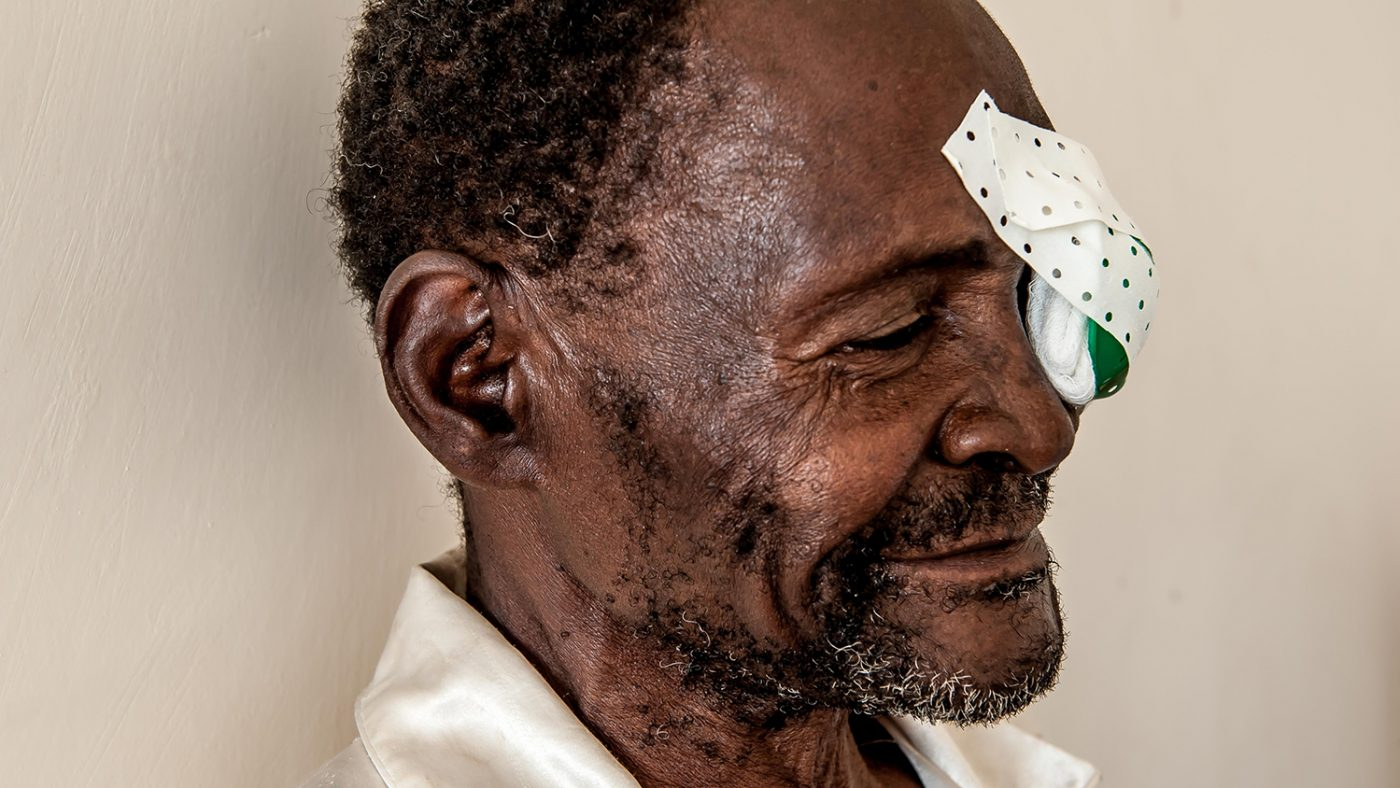 Winesi March after cataract operation with a patch over one eye.