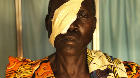 A women has a bandage over one eye.