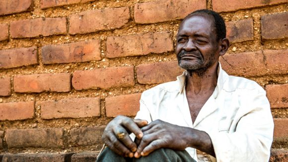 Mr Winesi who has bilateral cateracts, sits outside his house in Mwanza District.