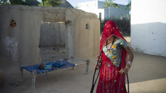 A 45-year-old lady is standing on crutches. She is wearing bright red clothes and a boy is asleep on a bed behind her.