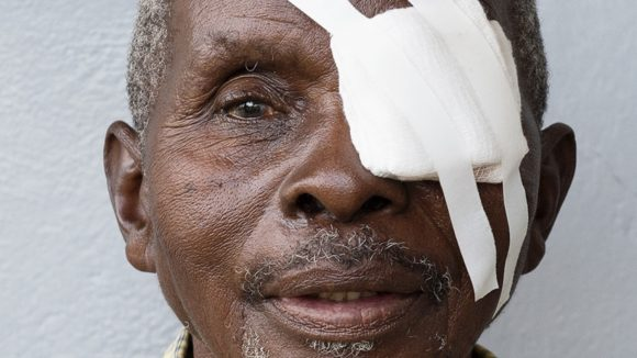 Close-up of a man's face; he has a bandage over one eye.