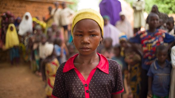 A girl with trachoma.