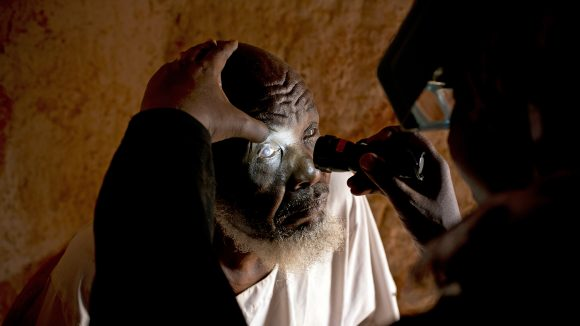 An eye health worker shines a torch into Issa's eyes to check for trachoma.