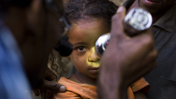 A five-year-old girl in Ethiopia has her eyes checked for trachoma.