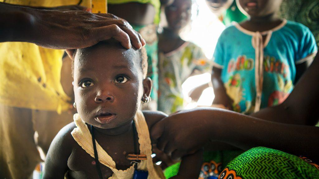 Aminata has her eyes screened for trachoma.