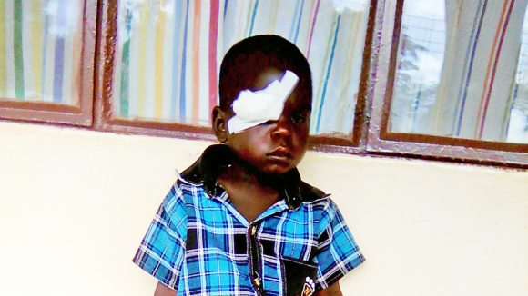 Little Zonobia sits outside her home with a bandage on one eye.