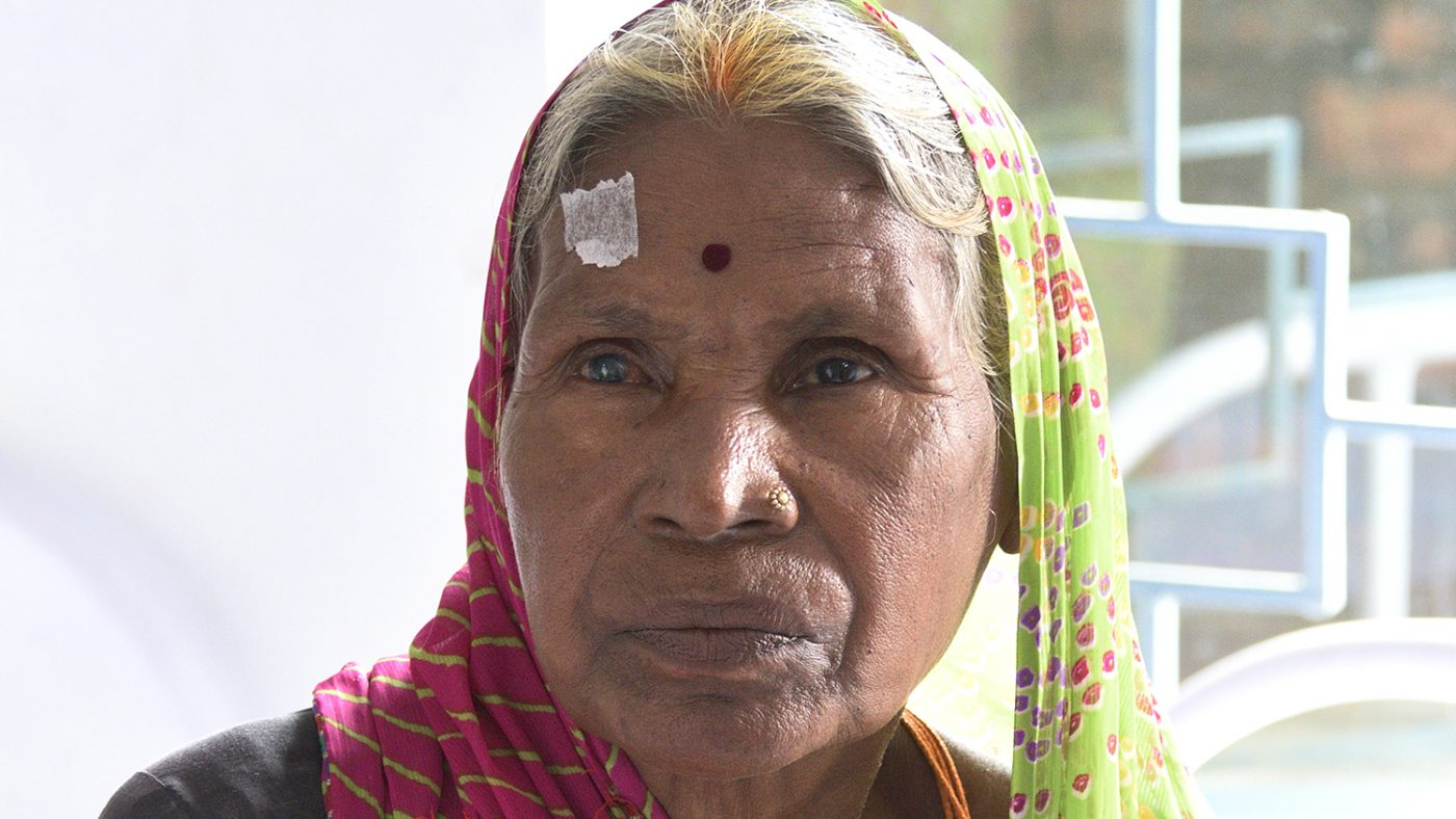 A close-up of a woman with cataracts.