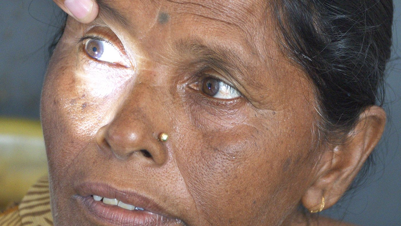 A close-up of a woman's eyes being examined.