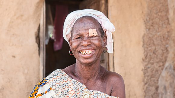 A woman with a bandage over her eye smiles at the camera.