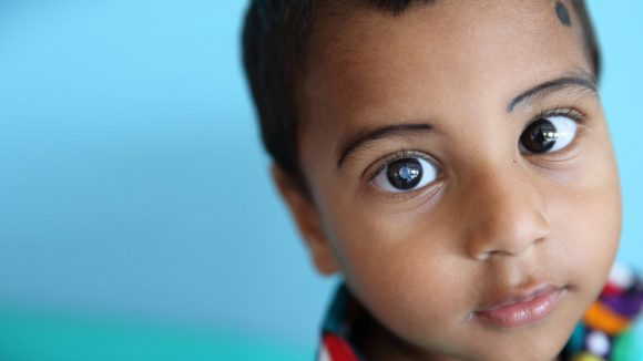 Nadir, a young boy from Bangladesh. His cataracts are clearly visible.