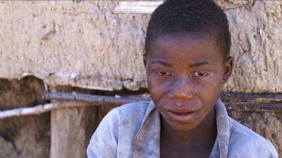 Nananga sits alone looking at the camera, as trachoma treatment drips from his eye.