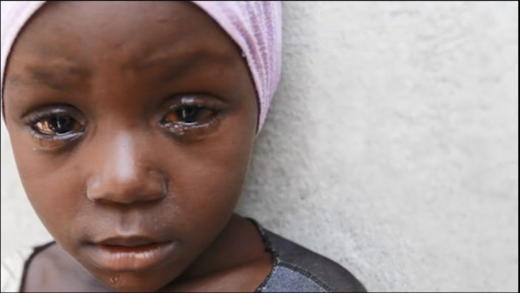 A young girl wearing a pink headscarf stands alone looking at the camera, as trachoma treatment drips from her eye.