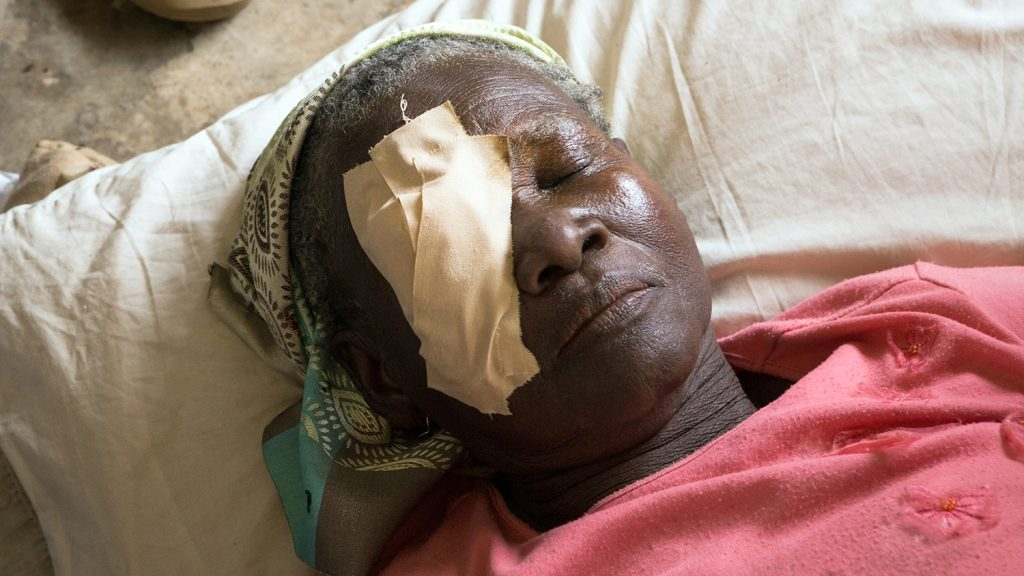 Fuleira rests in bed with a patch on her eye following trachoma surgery.