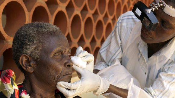 An elderly woman in Uganda has her eyes examined to check for trachoma.