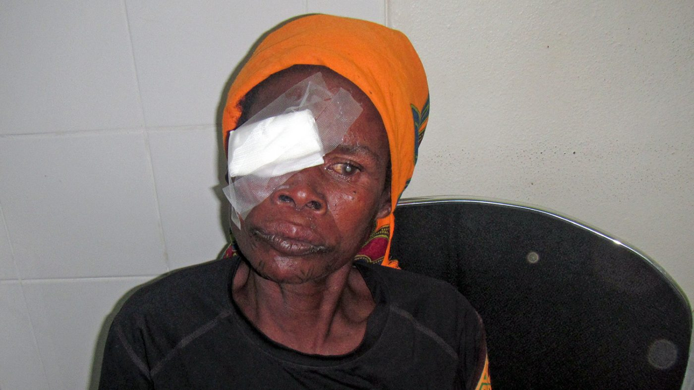 Fatima Artur with a bandage over her eye.