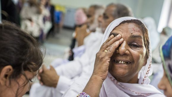 A woman smiles and holds one hand over her eye after successful cataract surgery.