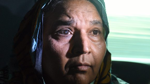A close-up of Naheed's face, with her cataract clearly visible.