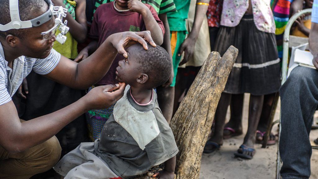 Pumelo is screened by a doctor for trachoma
