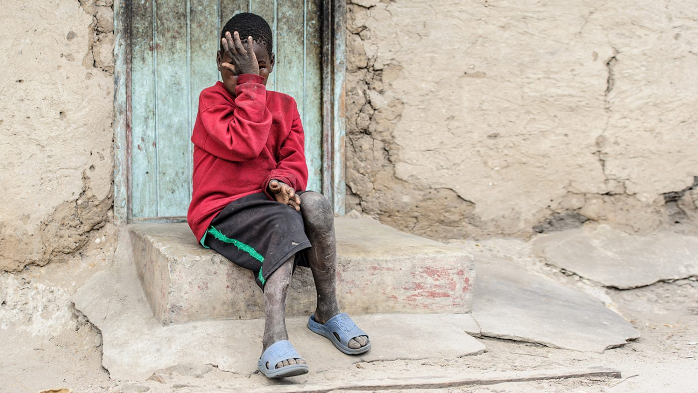 Mwiza sits outside his home, covering his eyes with his hand.