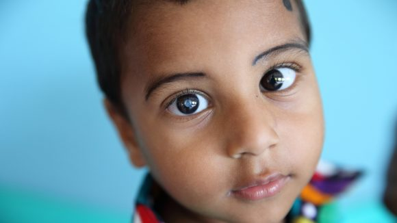 A close up image of Nadir, a child with cataract, looking at the camera.