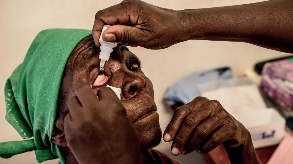 Ophthalmic Clinical Officer, Olga puts drops into Rhoda Dissi's eyes at the Queen Elizabeth Central Hospital before examining her eyes. Blantyre, Malawi.