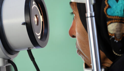 Close up of a lady having her eye examined.