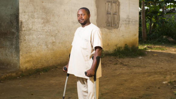 Ndong Jean Faustin stands with crutches.