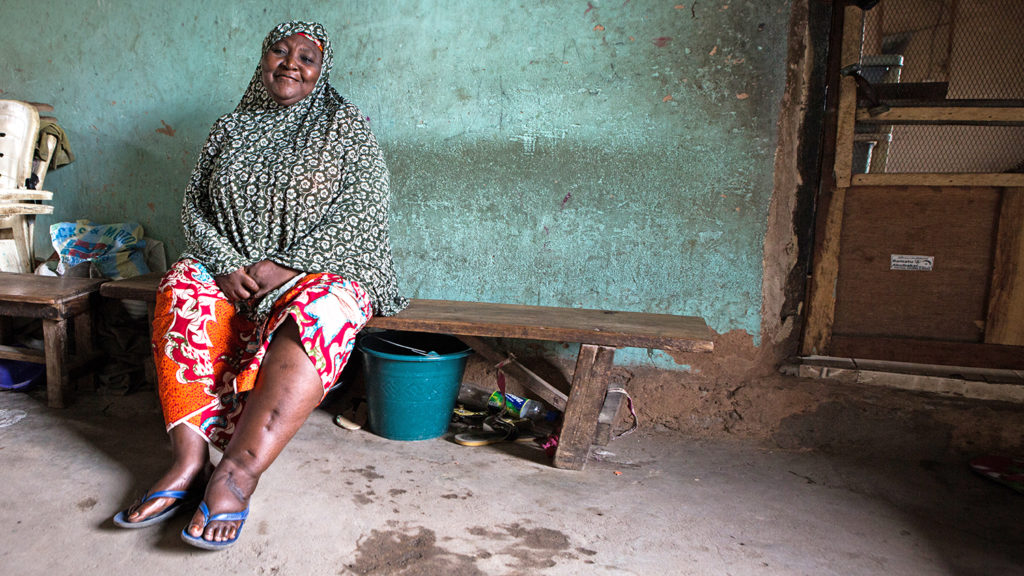 Hassana from Nigeria sits in her home. SHe has lymphatic filariasis and her left leg is visibly swollen.