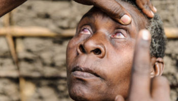 Aluna from Tanzania has her eyes checked for trachoma. They are visibly red and swollen.