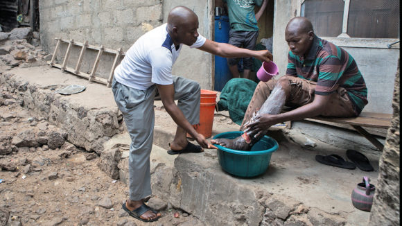 A health worker shows a man with LF how to wash his legs to alleviate his symptoms.