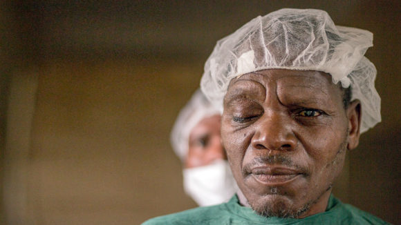 A patient in a surgical gown and cap, with a visible cataract in his left eye.