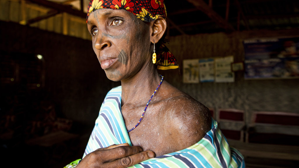 Women shows a rash on her skin.