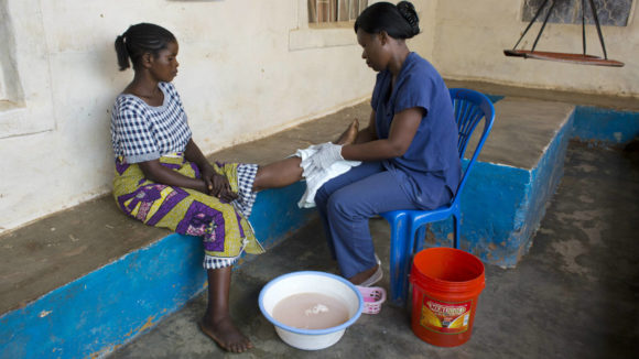 A nurse helps a woman learn how to care for her swollen limb caused by lymphatic filariasis.