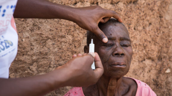 Hands applying an ointment to an older woman's eye.
