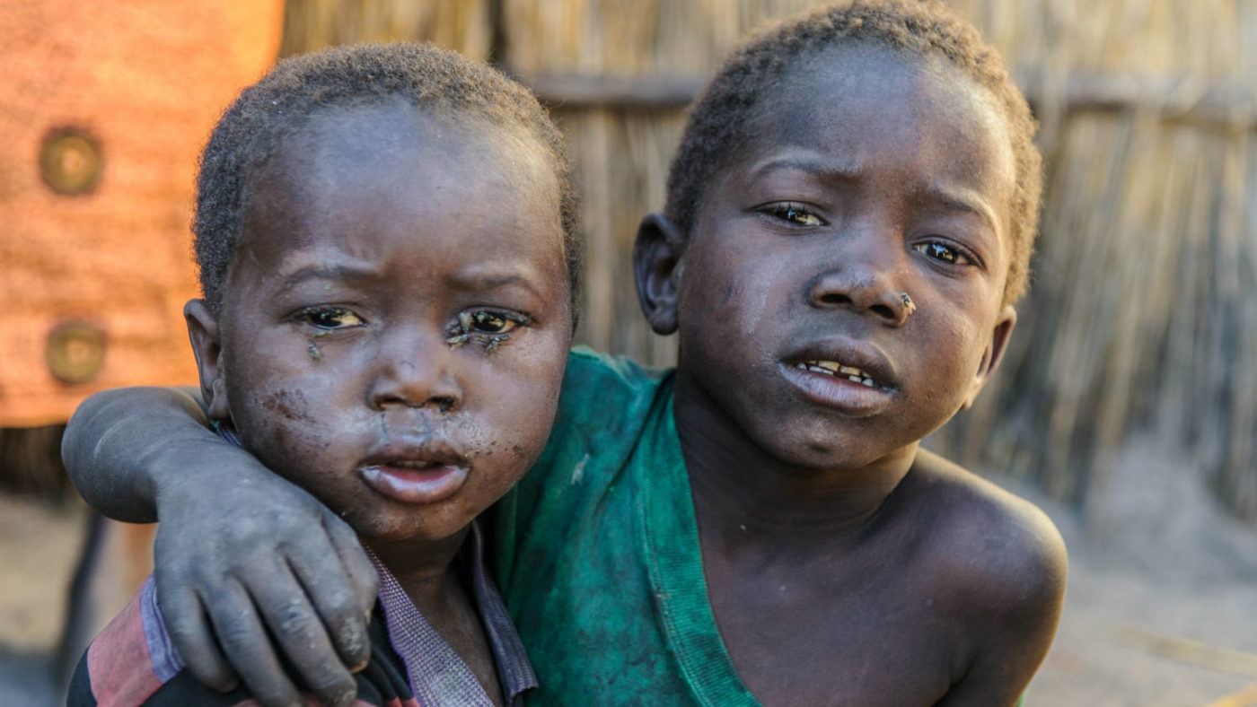 Siblings suffering with painful trachoma in their eyes