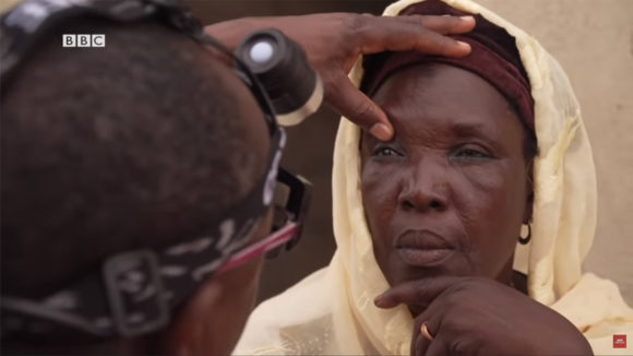 A still from BBC Africa's La Vie programme, showing a woman having her eyes examined, plus the BBC logo.