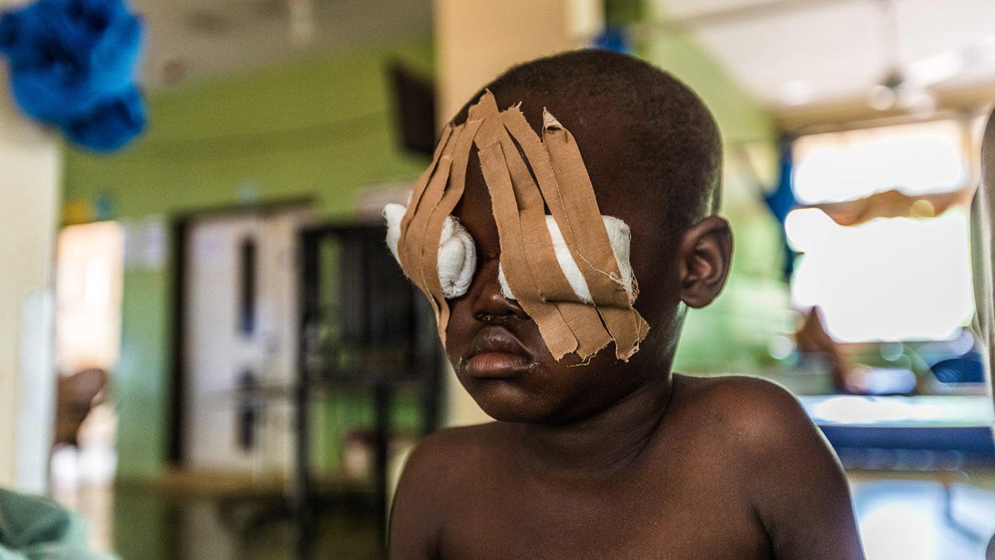 Muzii had trichiasis surgery in Nigeria