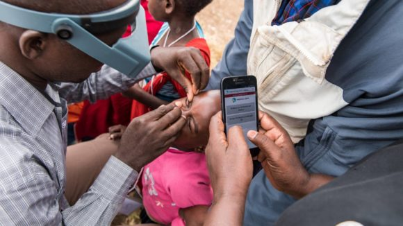 A Tropical Data trainee examines a young child for trachoma while the recorder enters data into a mobile phone.