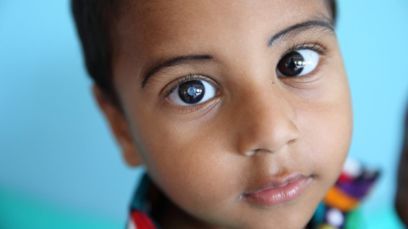 A close-up of three-year-old Nadir's face, with a cloudy cataract visible in the centre of his right eye.