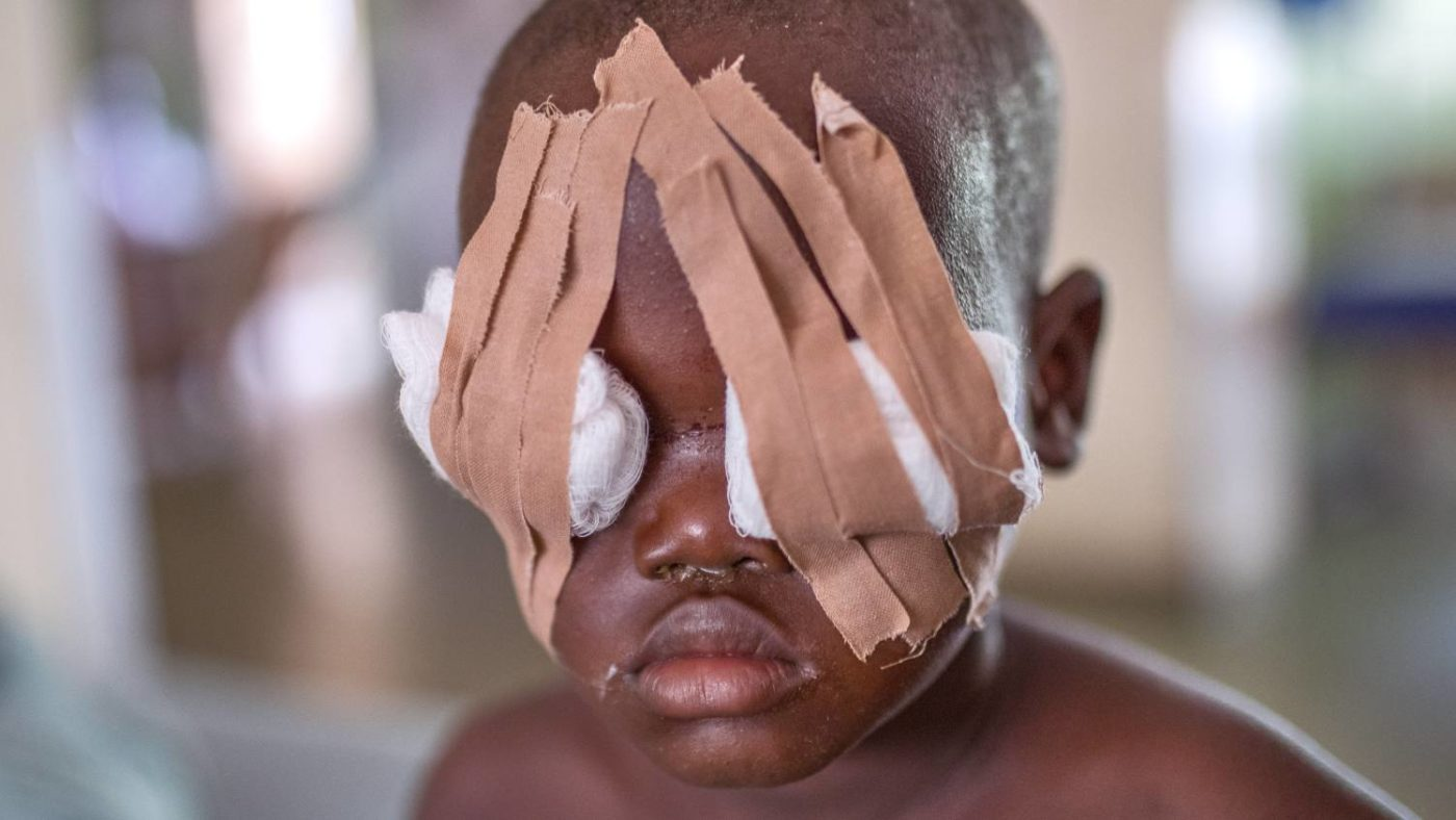 Muzi with dressings over his eyes after his operation.