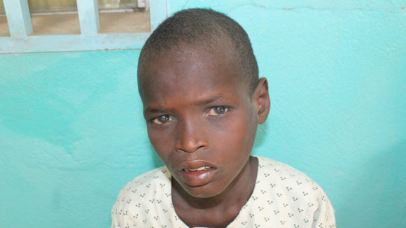 Young boy waiting trichiasis surgery in Cameroon.
