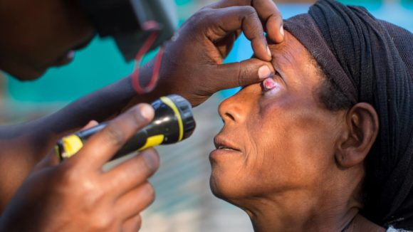 A lady's eye is examined with a torch
