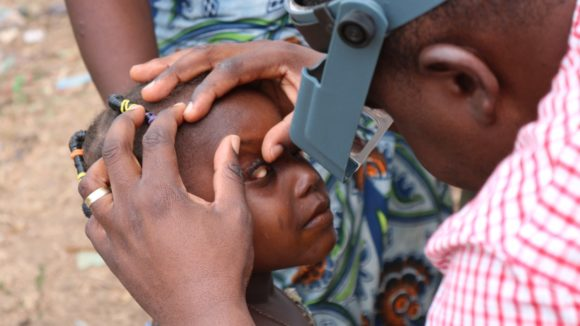 Young girl's eye is examined for trachoma