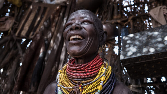 A woman wearing many colourful necklaces smiles after having bandages removed.