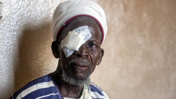 A man sits against a wall after having trachoma surgery. He has a bandage covering one eye.