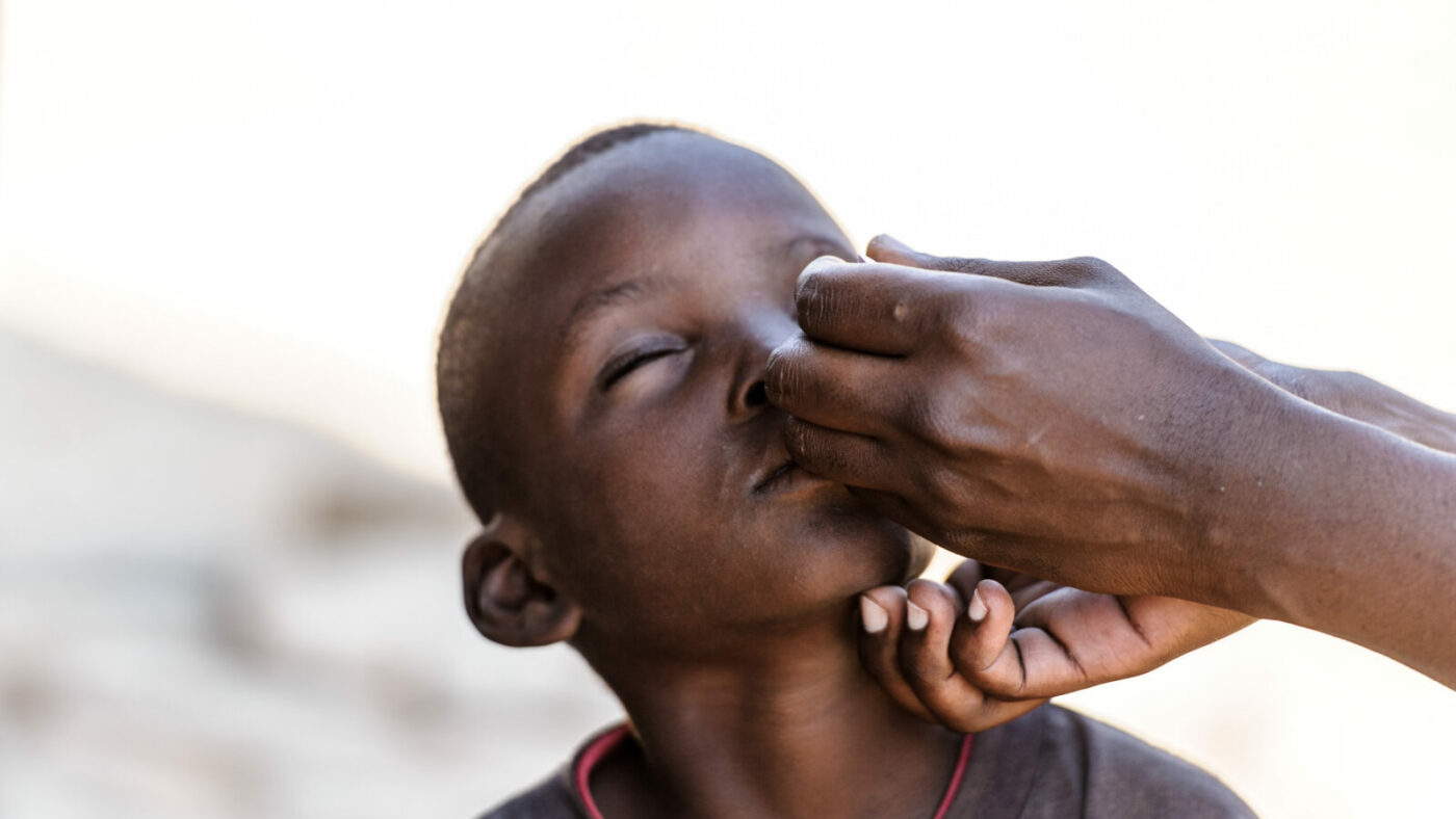 A young boy, Bretty, has ointment applied to his trachoma infected eye.