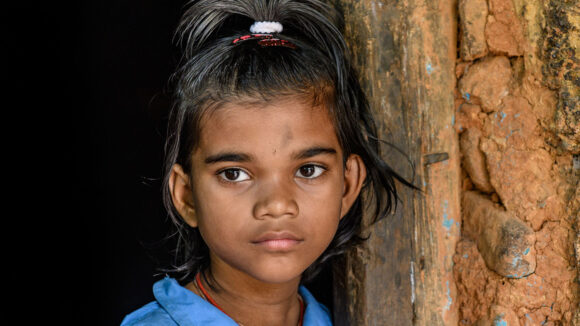 A close up of Archana, her cataracts a little visible.